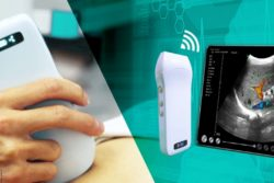Bild: Ultraschallsonde mit Bluetooth; Copyright: Beijing Konted Medical Technology