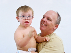 Photo: Child with mit Down's syndrome