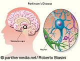 Graphic: Change of the brain at Parkinson's patients