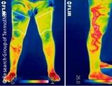 Photo: Thermografic images of a patient's legs