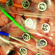 Photo:Electrodes sitting atop an epilectic patient's brain