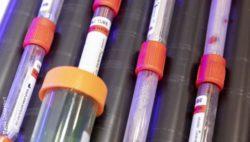 Bild: Labormedizin Röhrchen mit Blutproben; Copyright: Messe Düsseldorf