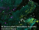 Photo: Fluorescent image of biofilms on cancer tissue