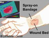 Graphic: the transparent liquid bandage