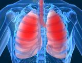 Research demonstrates potential method to better control lung cancer using radiotherapy