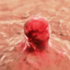 Mechanism Linked to Tumors Becoming More Aggressive