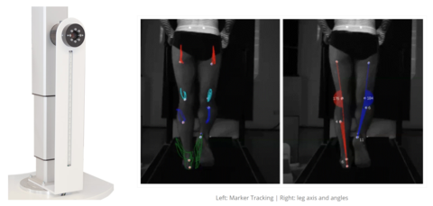 DIERS leg axis posterior | Video Gait Analysis