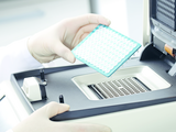 Intelligent typing of disease associations - with the real-time PCR kits of the FastQ® linie directly from blood samples or DNA