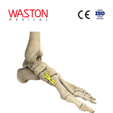 The First Metatarsal Cuneiform Joint Medial Plate
