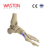 Hollow Metatarsal Osteotomy Plate