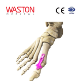 Metatarsophalangeal Joint Fusion Plate I