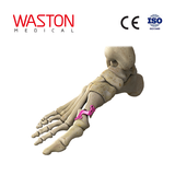 Distal of the First Metatarsal Osteotomy Plate
