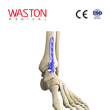 Anterior Ankle Fusion Plate