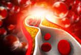 New Reagent for Direct Determination of HDL-cholesterol