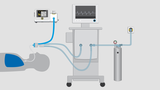 The MIRUS system incl. ORS Clean Air connection