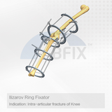 Orthopedic Ilizarov Ring Fixator for Intra-articular Fracture of Knee