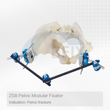 ZS8 Orthopedic Pelvic Fixator for Fracture
