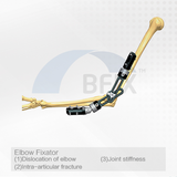 D305 Orthopedic Elbow Fixator for Dislocation and Fracture