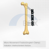 D117 Micro Movement Orthopedic External Fixator Angled Clamp for Intertrochanteric Fracture