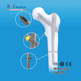 Orthopedic Trauma Implants- PFIA Nail System