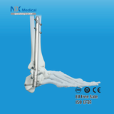Orthopedic Trauma Implants- Expert Ankle Fusion Nail System