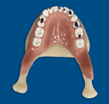 Jaws with a jawbone with replaceable cariuos teeth - Upper jaw
