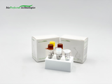 Picture COVID 19 Coronavirus Real Time PCR Kit