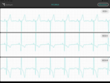 Live-Preview your ECG signals with the Cortrium App