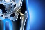 Duale Beschichtung für verbesserte Implantate