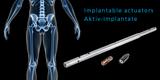 Implantable actuators