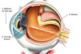ophthalmology eye swissoptic