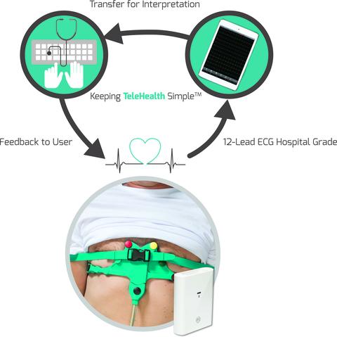 12-lead Mobile ECG with ECG Electrodes belt