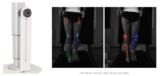 DIERS leg axis posterior | Video Gait Analysis