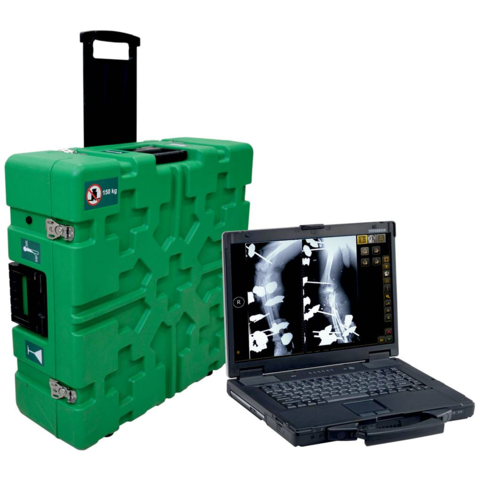 diarm mw mobile dr suitcase system