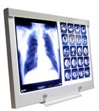 Röntgenfilmbetrachter LED NGP-Serie und Röntgenfilmbetrachter für den Operationssaal