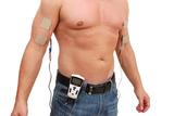 EMP 2 PRO - Anwendung des EMS-Geräts zur Stimulation der Arme