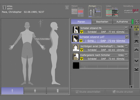 X-ray acquisition software