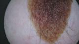 Skin image from Higo®