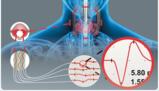 C2 Xplore – Thyroid surgery