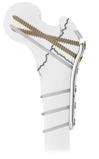 PFF Proximaler Oberschenkelknochen