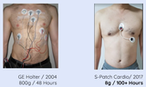 Comparison between Holter & S-Patch