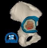 3D Side bone tumor