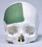 cranio face 2