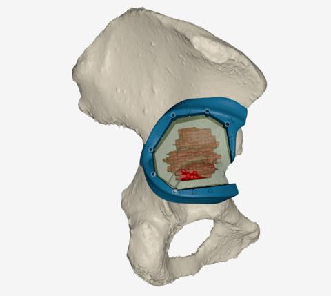 Pelvis tumeur rendering HD lighter small
