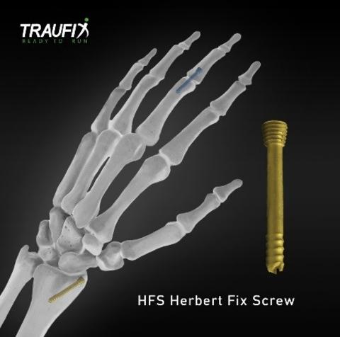 Herbert Fix