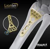 Traufix® brand Lionter Distal Radio Plate