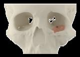 Restore position of eyeball