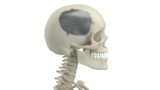 Meticuly: Patient-Specific Cranial Mesh, Personalized titanium cranial plate for Cranioplasty.