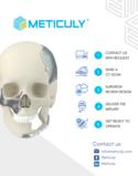 Meticuly: Patient-Specific Orbital Mesh
